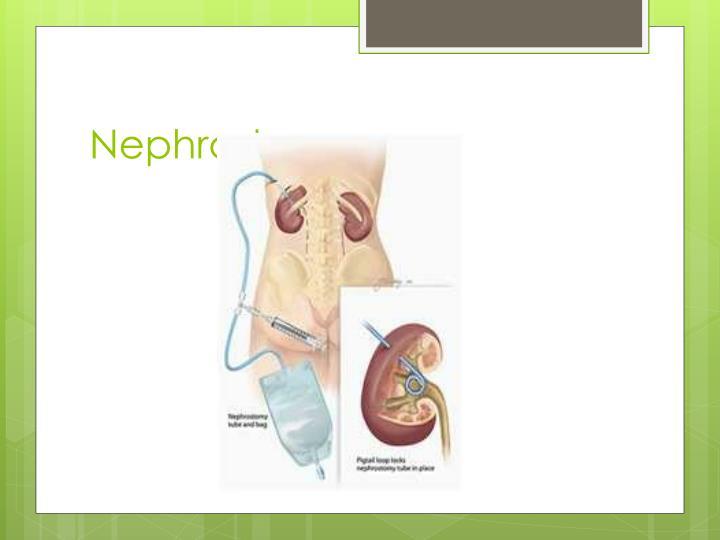 Nephrostomy