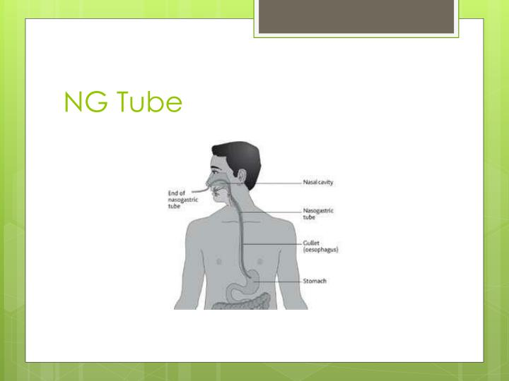 NG Tube