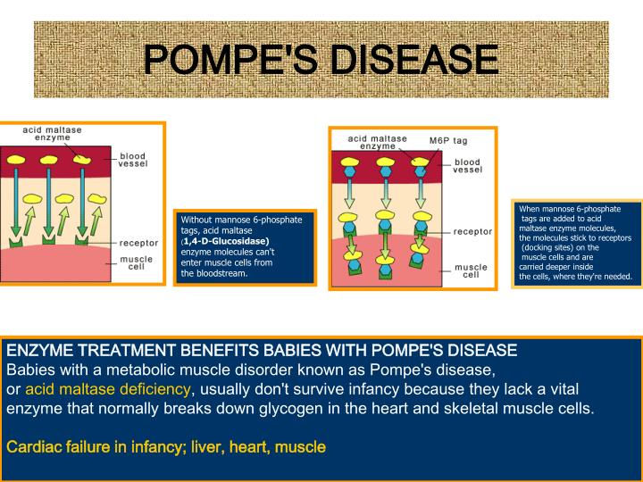 POMPE'S DISEASE