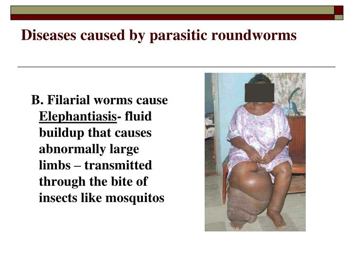 Diseases caused by parasitic roundworms