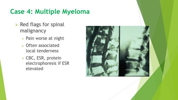 Case 4: Multiple Myeloma