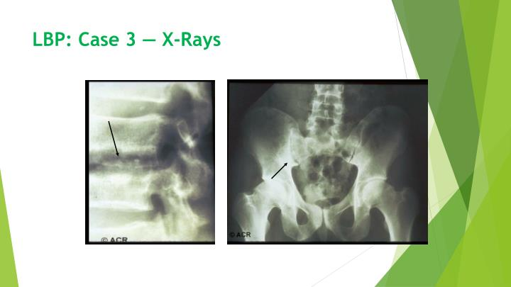 LBP: Case 3 — X-Rays
