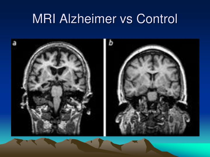 how to make a presentation about alzheimer