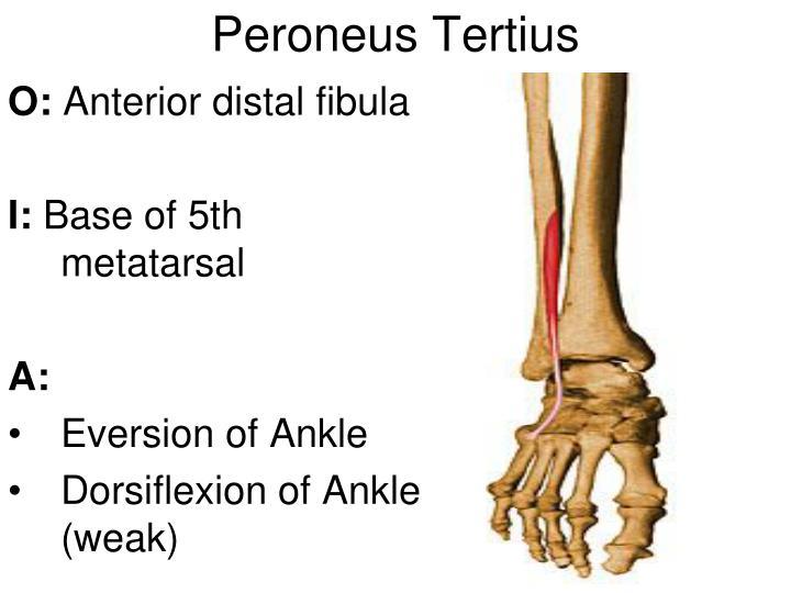 Peroneus Tertius