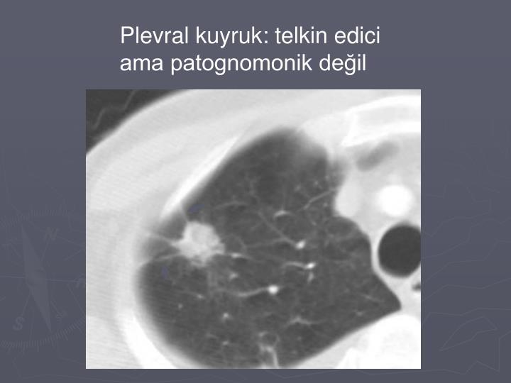 Plevral kuyruk: telkin edici ama patognomonik değil