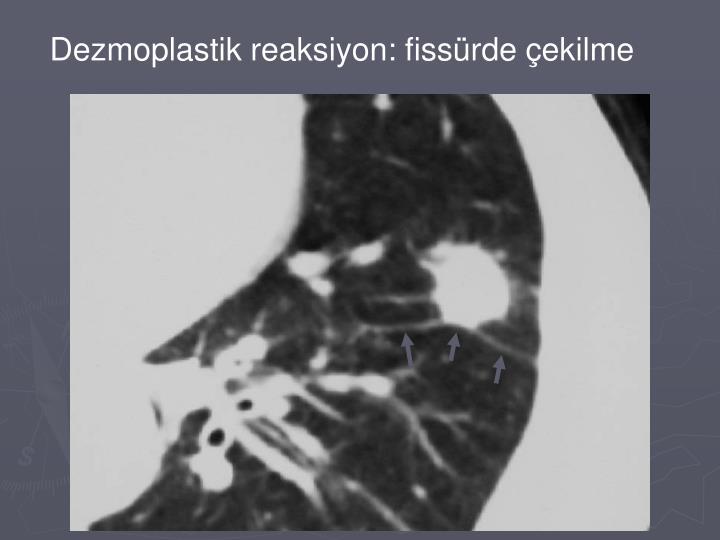 Dezmoplastik reaksiyon: fissürde çekilme