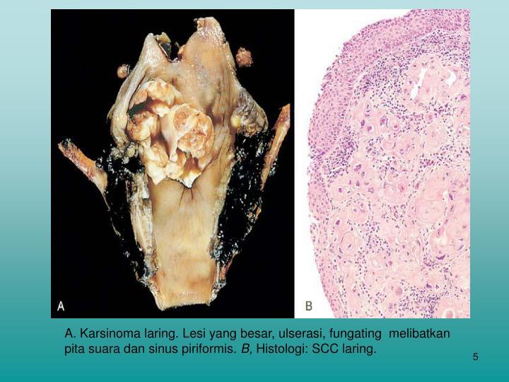 A. Karsinoma laring. Lesi yang besar, ulserasi, fungating  melibatkan pita suara dan sinus piriformis.