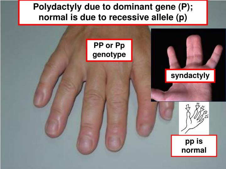 Polydactyly due to dominant gene (P); normal is due to recessive allele (p)