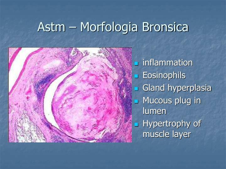 Astm – Morfologia Bronsica