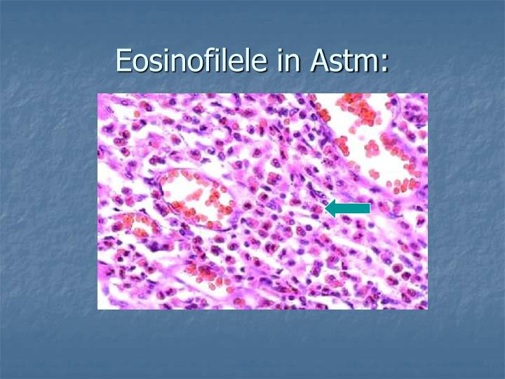 Eosinofilele in Astm:
