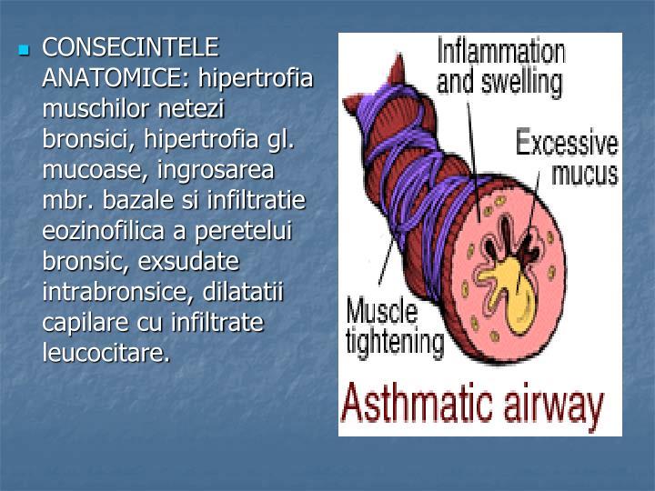 CONSECINTELE ANATOMICE: hipertrofia muschilor netezi bronsici, hipertrofia gl. mucoase, ingrosarea mbr. bazale si infiltratie eozinofilica a peretelui bronsic, exsudate intrabronsice, dilatatii capilare cu infiltrate leucocitare.