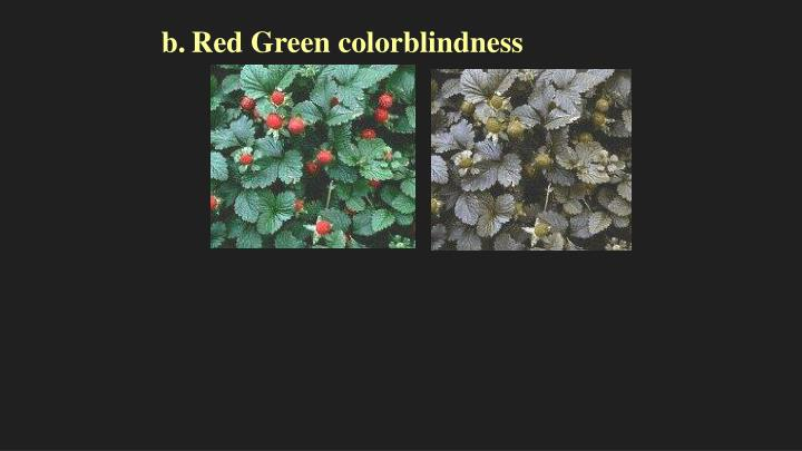 b.Red Green colorblindness