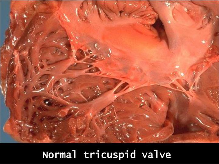 Normal tricuspid valve