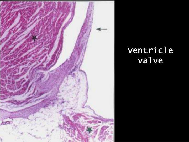 Ventricle valve