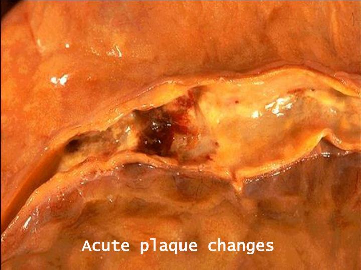 Acute plaque changes