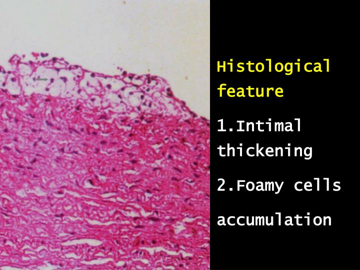 Histological feature