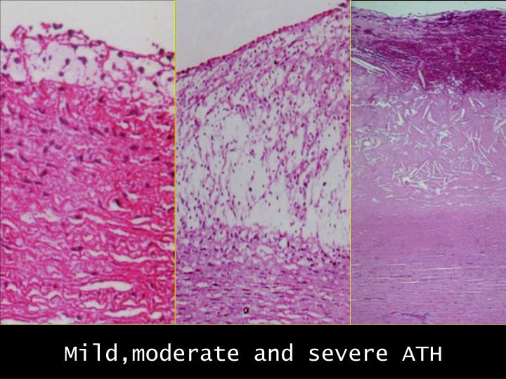 Mild,moderate and severe ATH