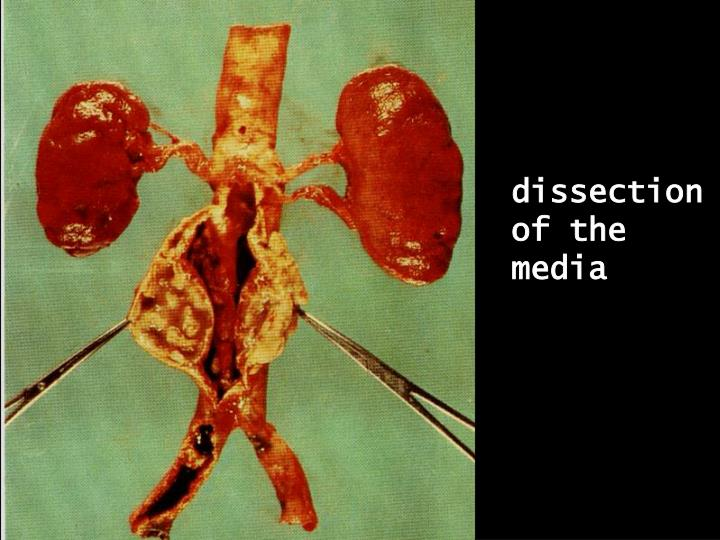 dissection of the media