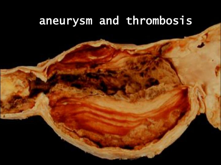 aneurysm and thrombosis