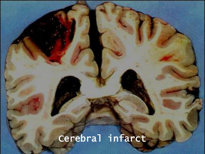 Cerebral infarct