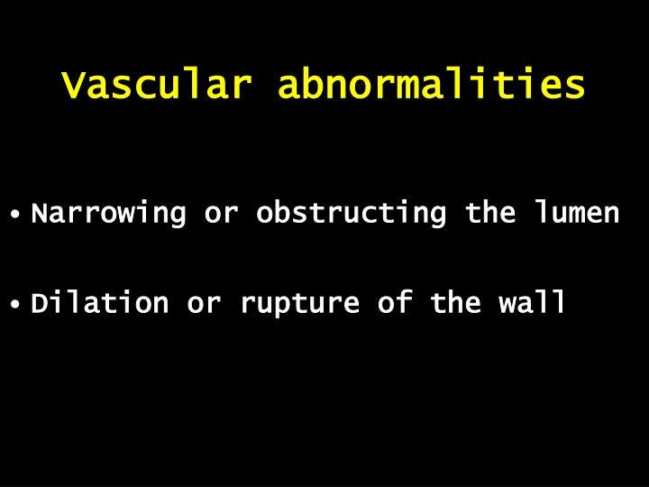 Vascular abnormalities