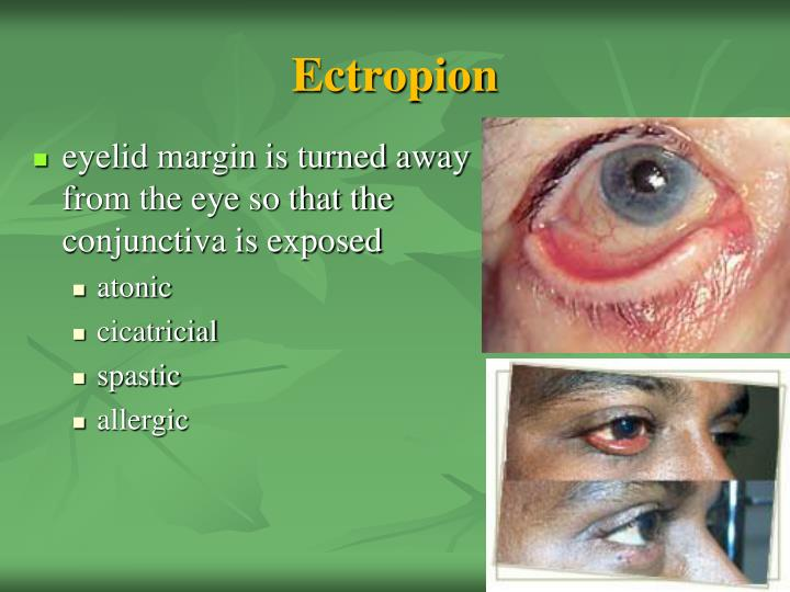 Ectropion