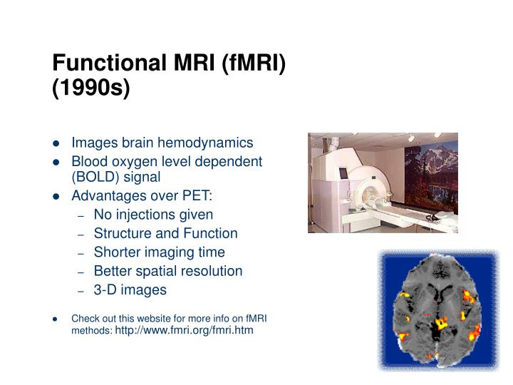 Functional MRI (fMRI)