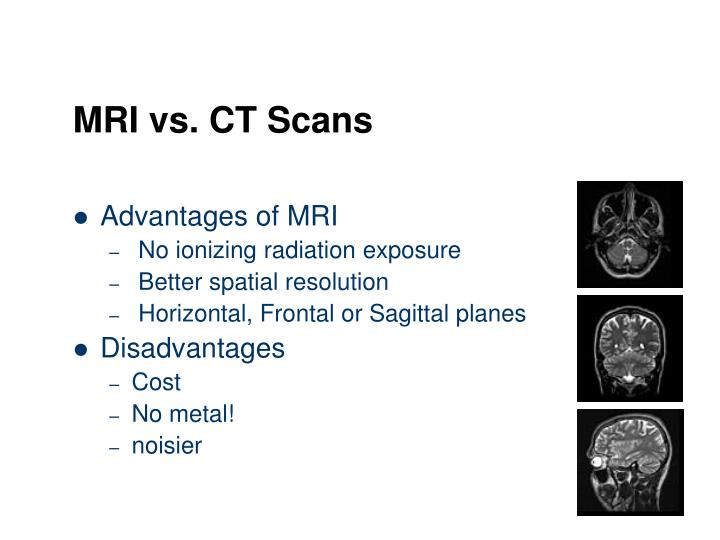 Advantages of MRI