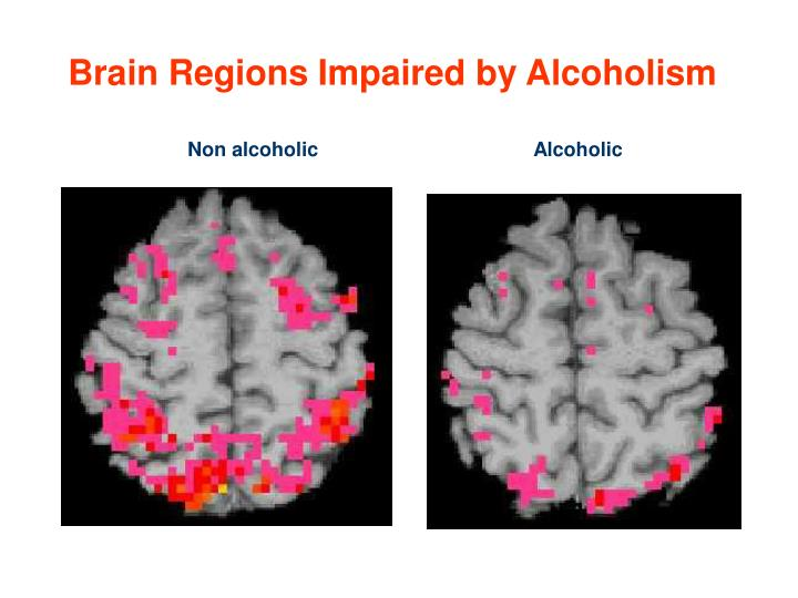 Brain Regions Impaired by Alcoholism