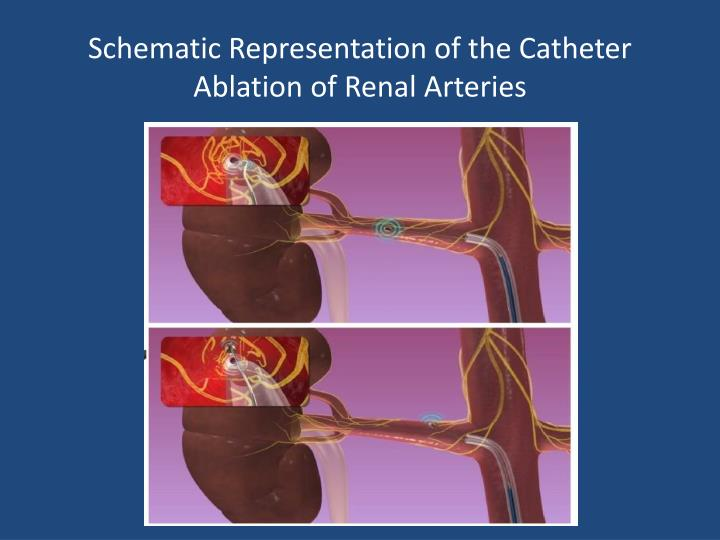Schematic Representation of the Catheter Ablation of Renal Arteries