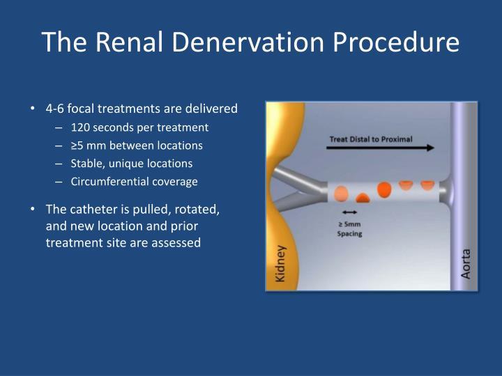 The Renal Denervation Procedure