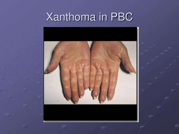 Xanthoma in PBC