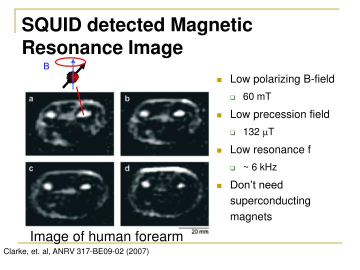 SQUID detected Magnetic Resonance Image