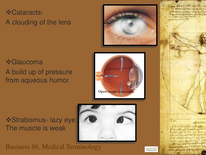 Cataracts-