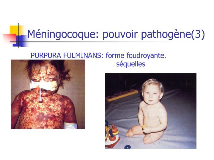 Méningocoque: pouvoir pathogène(3)
