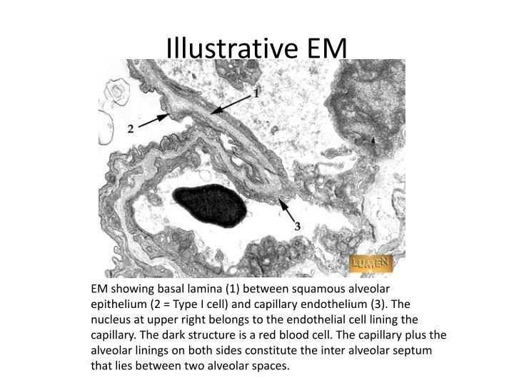Illustrative EM