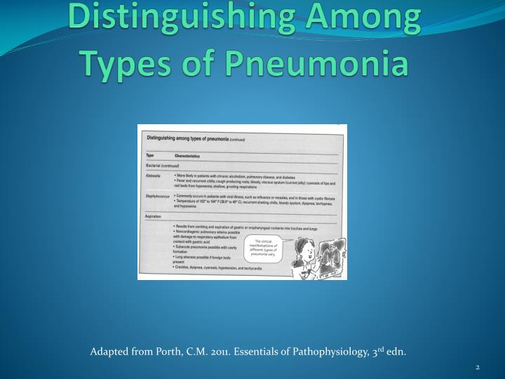 Distinguishing Among Types of Pneumonia