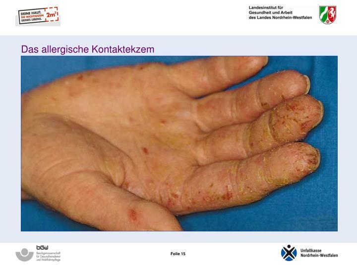 Das allergische Kontaktekzem
