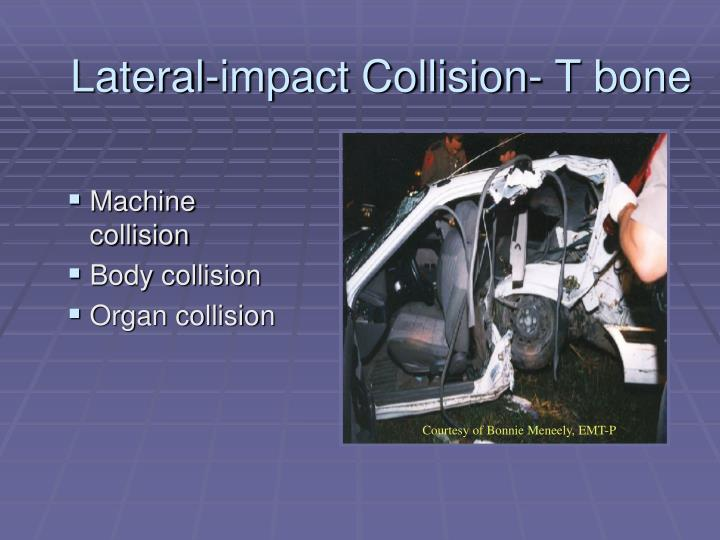 Lateral-impact Collision- T bone