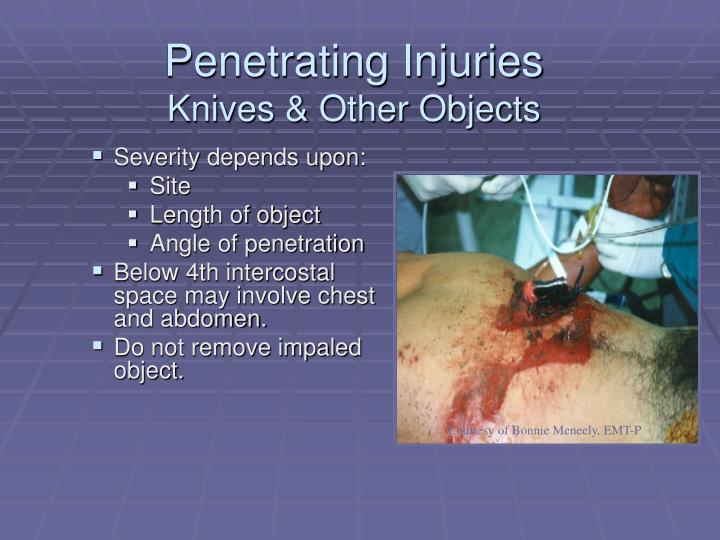 Penetrating Injuries