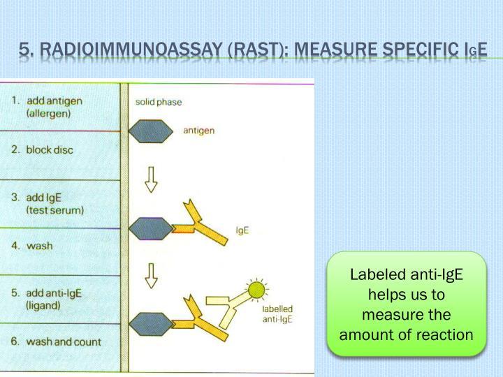 5. Radioimmunoassay (