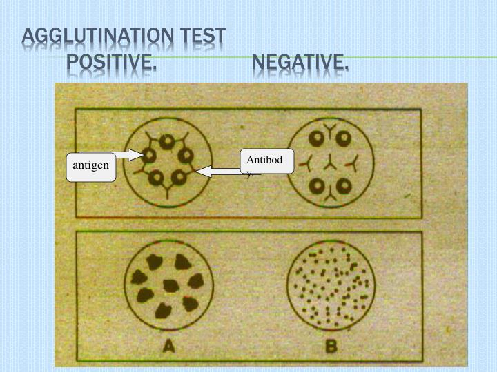 Agglutination Test