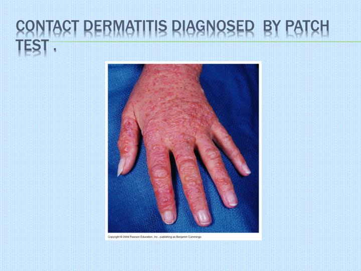contact dermatitis diagnosed  by patch  test .
