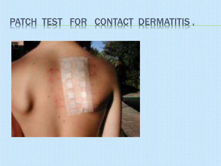 Patch  test   for   contact  dermatitis .