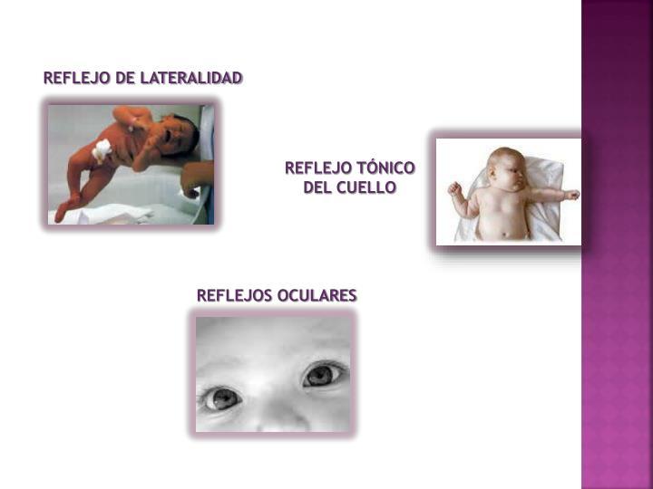 REFLEJO DE LATERALIDAD