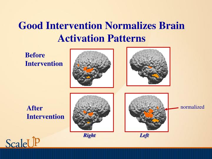 Good Intervention Normalizes Brain Activation Patterns