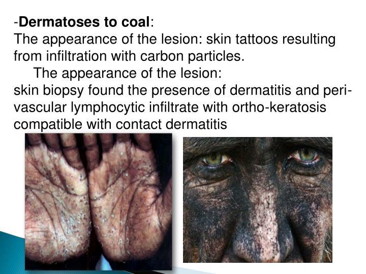 Dermatoses to coal