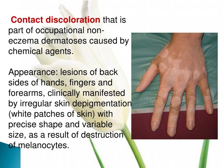 Contact discoloration