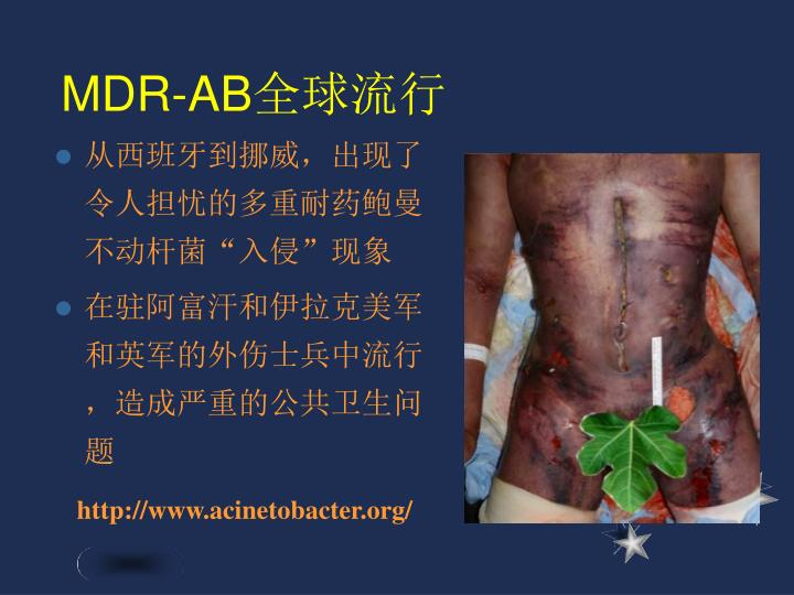 MDR-AB