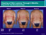 clearing of skin lesions through 6 months phase iii u s trial re treatment data